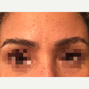 35-44 year old woman treated with Eyebrow Transplant after 3339294