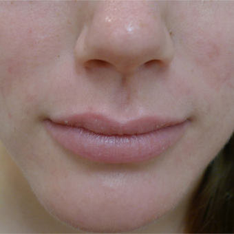18-24 year old woman treated with Acne Treatment after 3670391