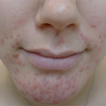 18-24 year old woman treated with Acne Treatment before 3670391