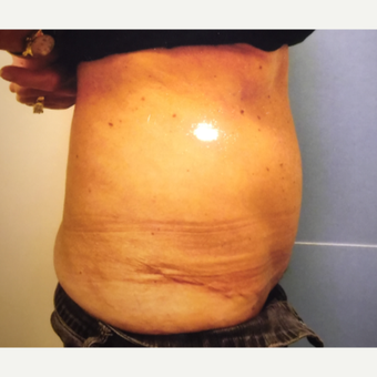 55-64 year old woman treated with Tummy Tuck after 3384448