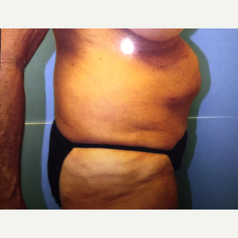 55-64 year old woman treated with Tummy Tuck before 3384448