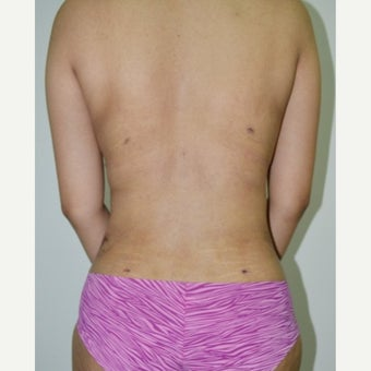 21 year old with liposuction of back and abdomen after 1822268