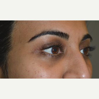 32 year old with droopy upper eyelids, underwent ptosis surgery and fat injection to upper eyelids. after 2721512