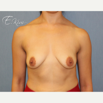 25-34 year old woman treated with Breast Lift with Implants before 3102583