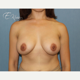 25-34 year old woman treated with Breast Lift with Implants after 3102583