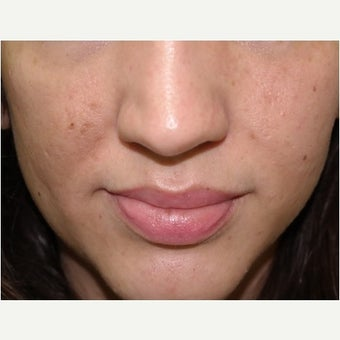 32 year old woman treated with InMode Fractora for acne scarring and discolorations from acne scarring after 1982759
