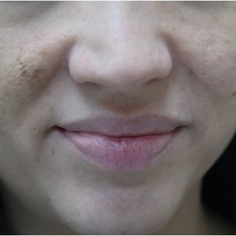 32 year old woman treated with InMode Fractora for acne scarring and discolorations from acne scarring before 1982759