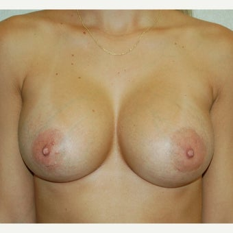 25-34 year old woman treated with Breast Augmentation after 2088878