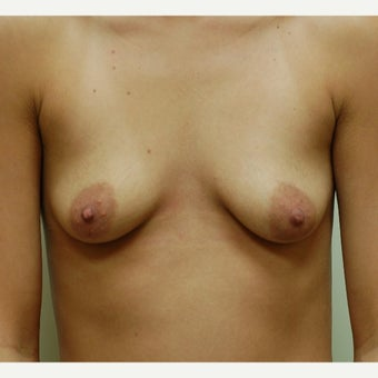 25-34 year old woman treated with Breast Augmentation before 2088878