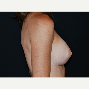 25-34 year old woman treated with Breast Implants after 3650944