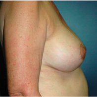 62 year old woman treated with Breast Lift with Implants after 3665927