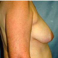 62 year old woman treated with Breast Lift with Implants before 3665927