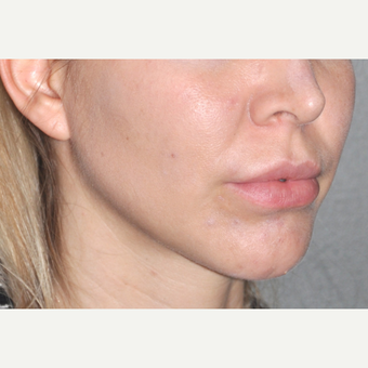 25-34 year old woman treated with Jaw Angle Implants before 2694213