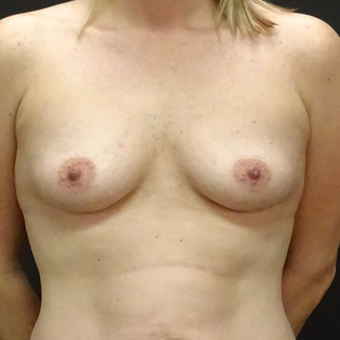 25-34 year old woman treated with Breast Augmentation before 3128405