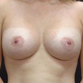 25-34 year old woman treated with Breast Augmentation after 3128405