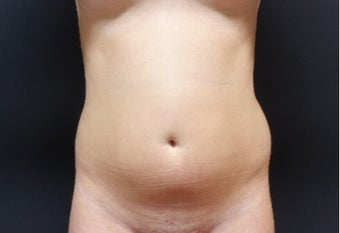 18-24 year old woman treated with Tumescent Liposuction before 3315612
