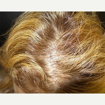 PRP for Hair Loss before 2459620
