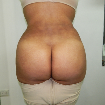 35-44 year old woman treated with Brazilian Butt Lift after 3370473