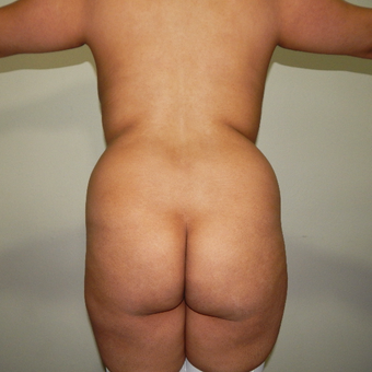 35-44 year old woman treated with Brazilian Butt Lift before 3370473