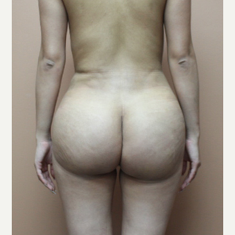 25-34 year old woman treated with Brazilian Butt Lift after 3452586