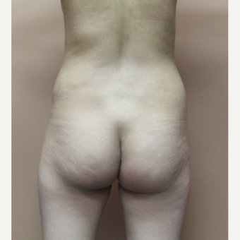 25-34 year old woman treated with Brazilian Butt Lift before 3452586