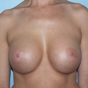 25-34 year old woman treated with Breast Augmentation after 3337276