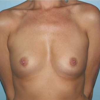 25-34 year old woman treated with Breast Augmentation before 3337276