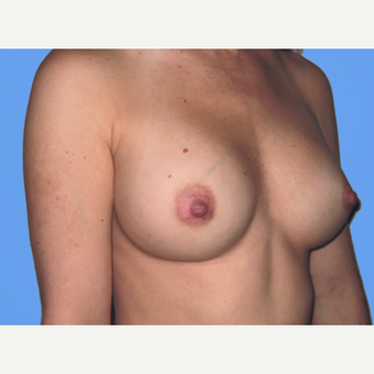 Breast Augmentation after 3731568