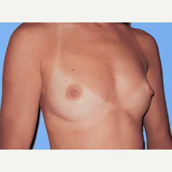 Breast Augmentation before 3731568