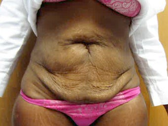 Tummy Tuck before 1412288