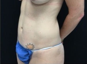 35-44 year old woman treated with Tummy Tuck before 3219182