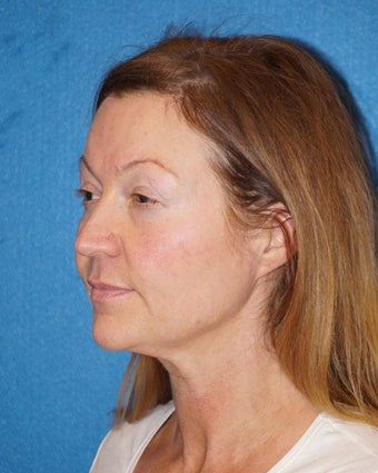44 year old woman treated with Facelift 3576622