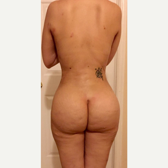 25-34 year old woman treated with Brazilian Butt Lift after 3806406