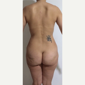 25-34 year old woman treated with Brazilian Butt Lift before 3806406