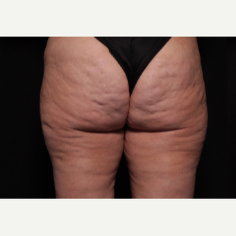 45-54 year old woman treated with Cellfina before 3104348