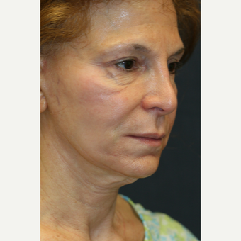 69 year old woman treated with Facelift Revision before 2936196