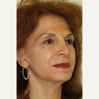 69 year old woman treated with Facelift Revision after 2936196