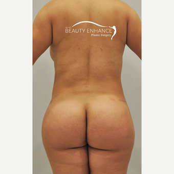 Tummy Tuck & BBL after 3072368