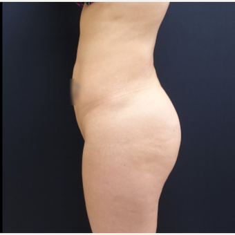 25-34 year old woman treated with Butt Augmentation using 712cc Round Silicone Butt Implants before 3259523