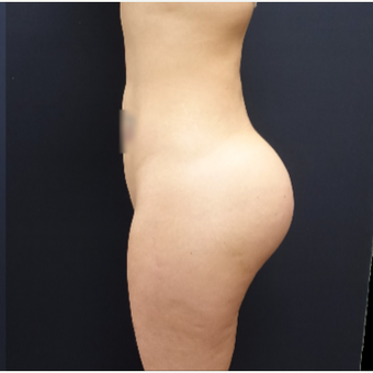 25-34 year old woman treated with Butt Augmentation using 712cc Round Silicone Butt Implants after 3259523