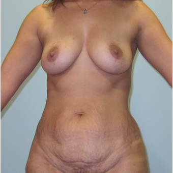 43-year-old woman treated with Mommy Makeover before 3326317