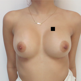 18-24 year old man treated with Breast Augmentation after 3695030