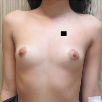 18-24 year old man treated with Breast Augmentation before 3695030