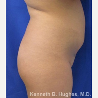 Liposuction before 3094184