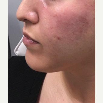 25-34 year old woman treated with Liquid Facelift after 3684388