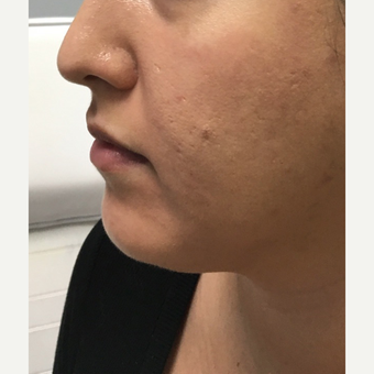 25-34 year old woman treated with Liquid Facelift before 3684388