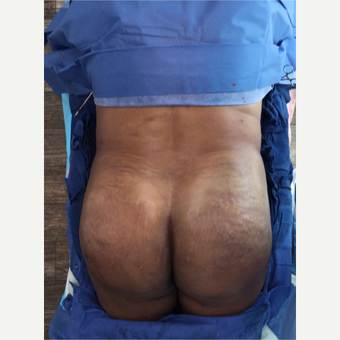 Woman treated with Brazilian Butt Lift after 3220306