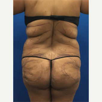 Woman treated with Brazilian Butt Lift before 3220306