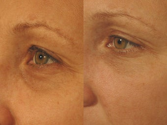 Tear Trough Before and After Pictures with Restylane for Tired Eyes before 1256632