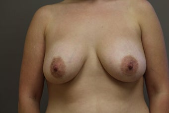 "33 year old female, 5'6"",140lbs., desires cosmetic improvement of breasts before 1252726"